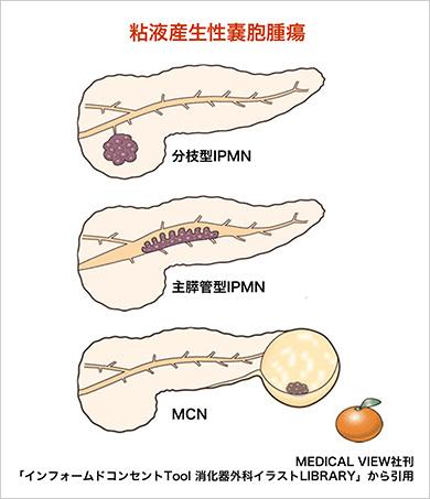 す いかん ない にゅ うと うねん えき 腫瘍